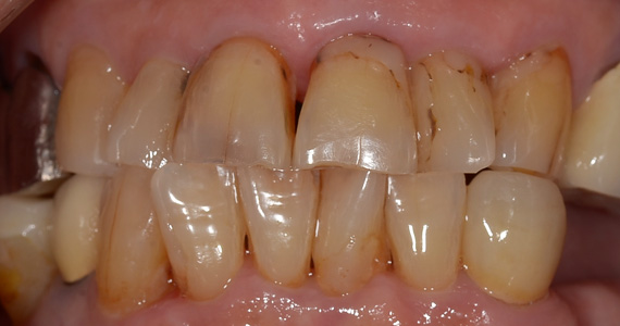 ステイン法前歯症例1