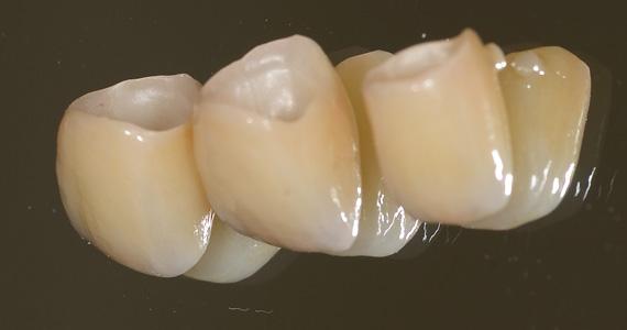 ステイン法前歯症例2