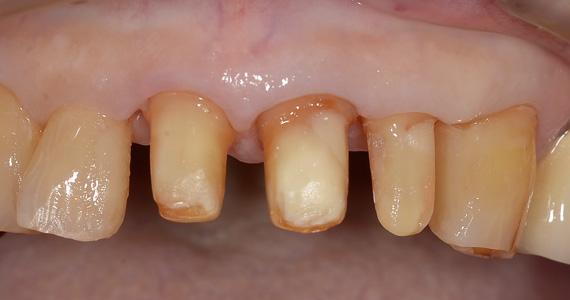 ステイン法前歯症例3