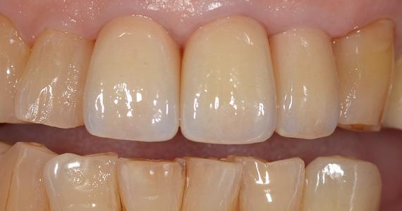 ステイン法前歯症例4