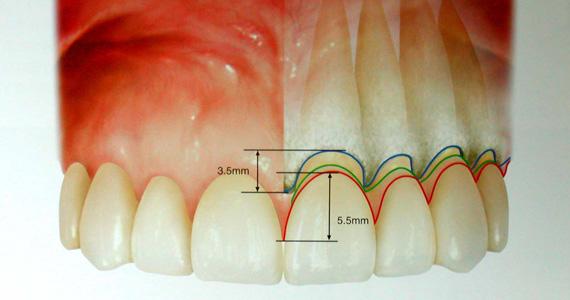 歯茎の前面と隣の歯との境界で高さに差がある