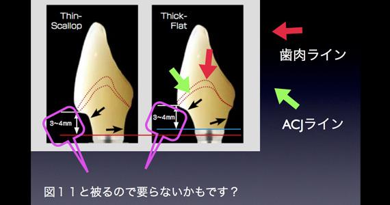 手術の段階でと仮歯の段階