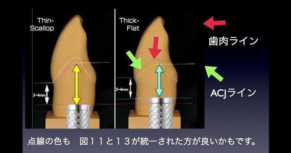天然歯に類似した歯茎の形